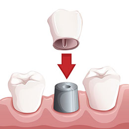 dental implant Columbus OH